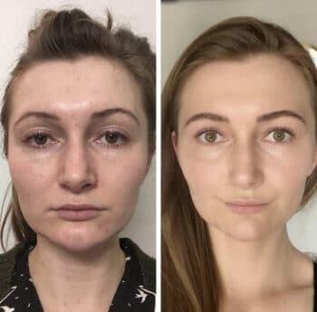 Une photo du visage d'anis avant et après la pratique du face yoga